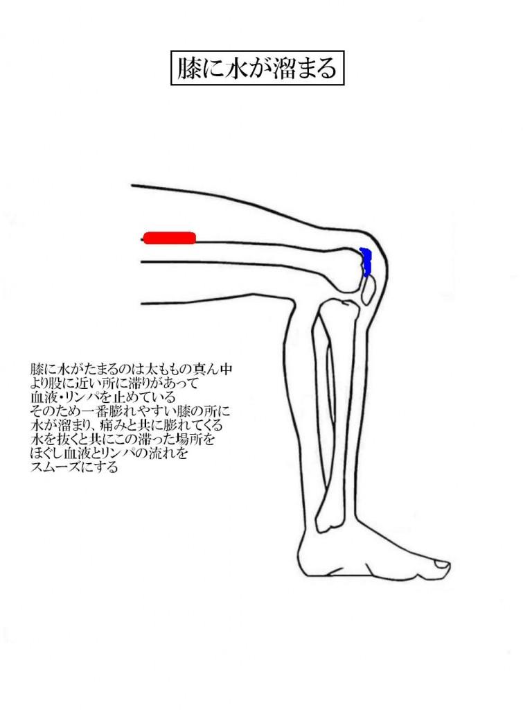 湿布 痛み 膝 の