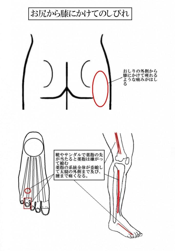 は 症 脊柱 と 狭窄 管